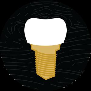 dental implants in hermitage, tn