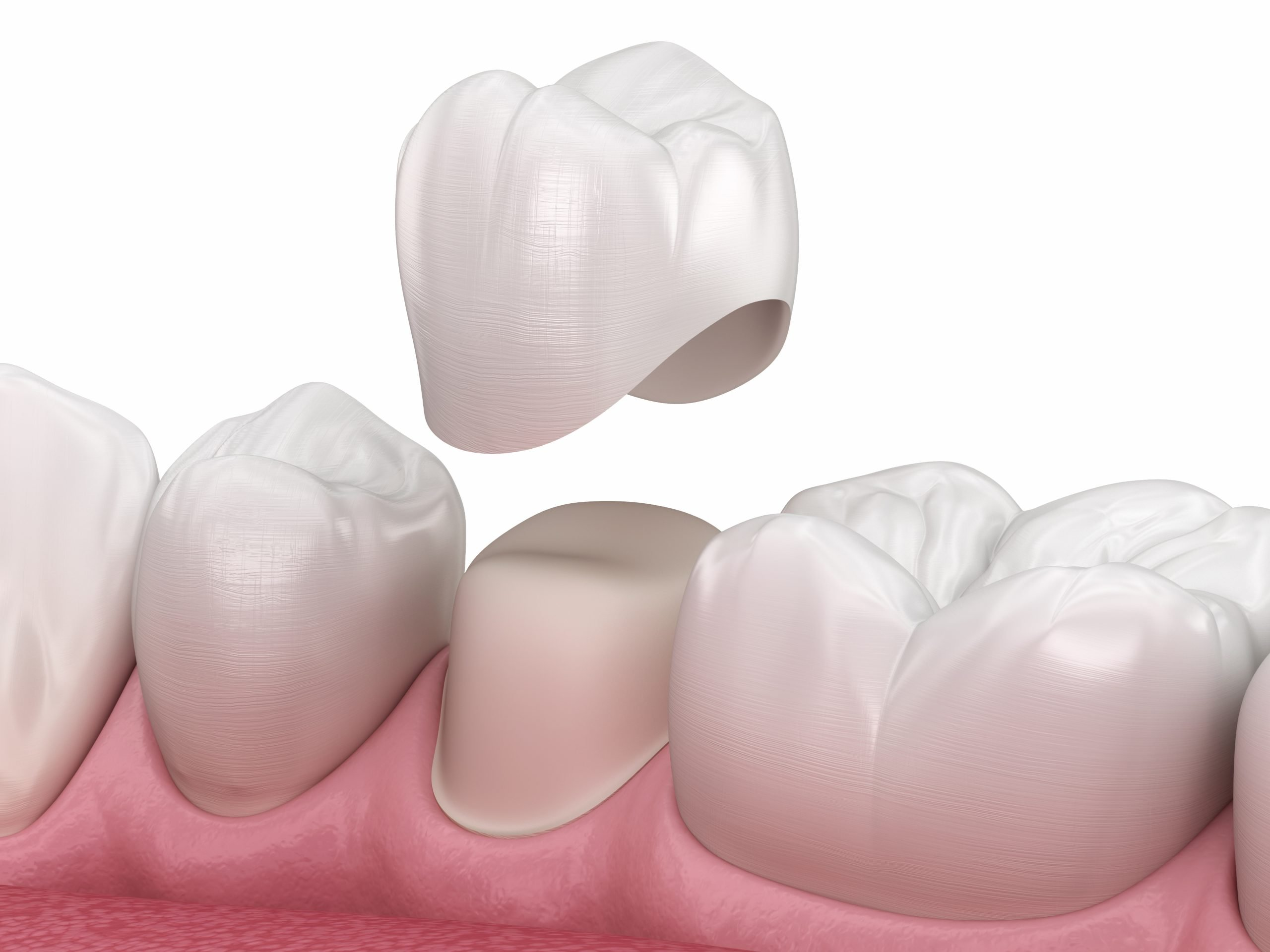 what's the difference between same-day crowns and traditional crowns?