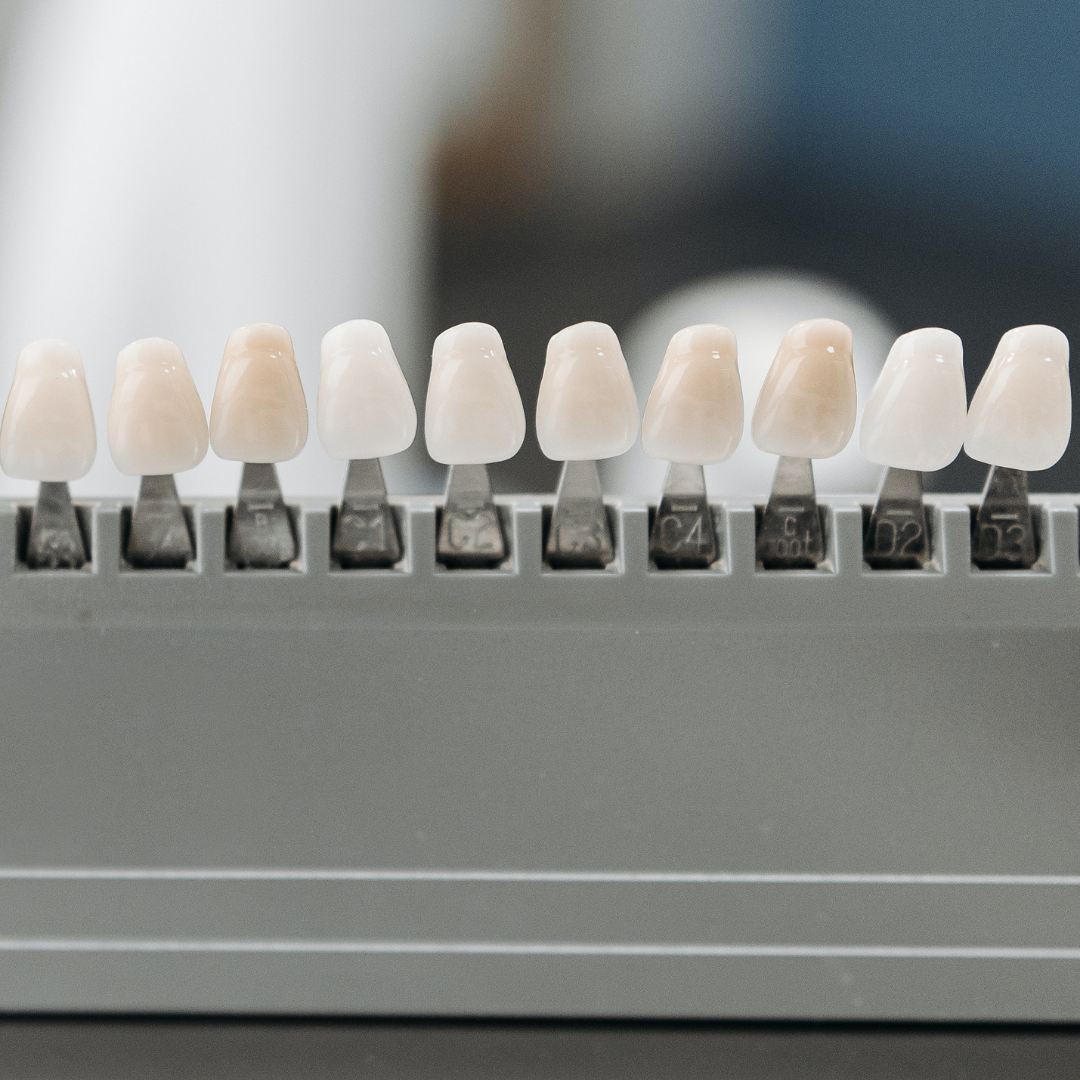Choosing Veneers for Your Smile Makeover