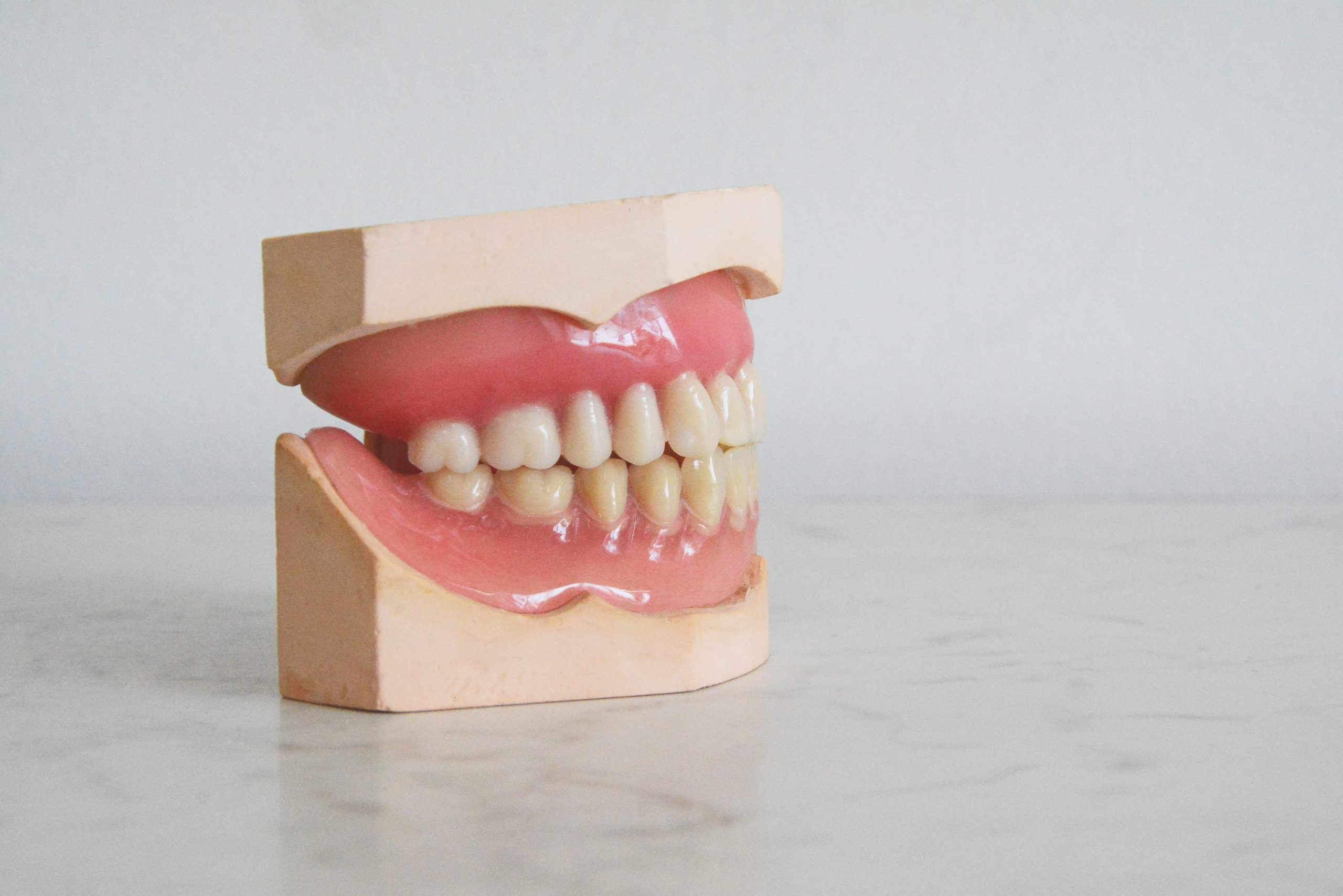 Bridges and Dentures: Cost, Differences, and Recommendations